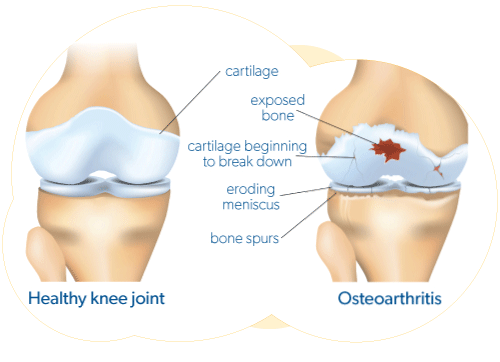 Healty knee joint and damaged asteoarthritis knee