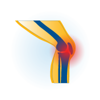 Icon of osteoarthritis knee pain